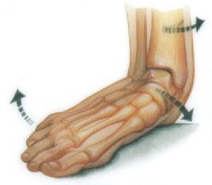 Pes Planus Treatment