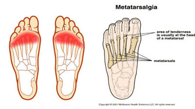 Metatarsalgia Treatment