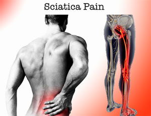 Symptoms Sciatica Pain