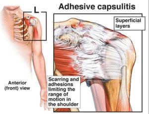 adhesive-capsulitis