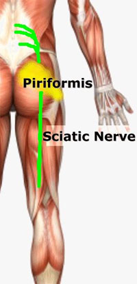 Piriformis Syndrome Treatment