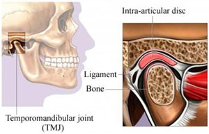 TMJ disorders Treatments