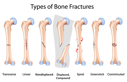 types-of-bone-fracture