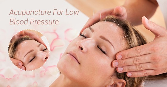 Acupuncture For Low Blood Pressure